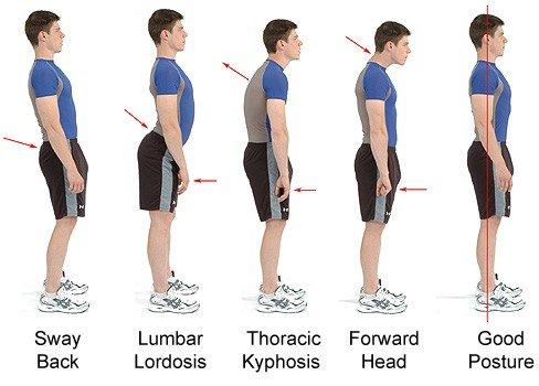 poor posture examples